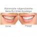 Beautiful Smile Whitening Strips